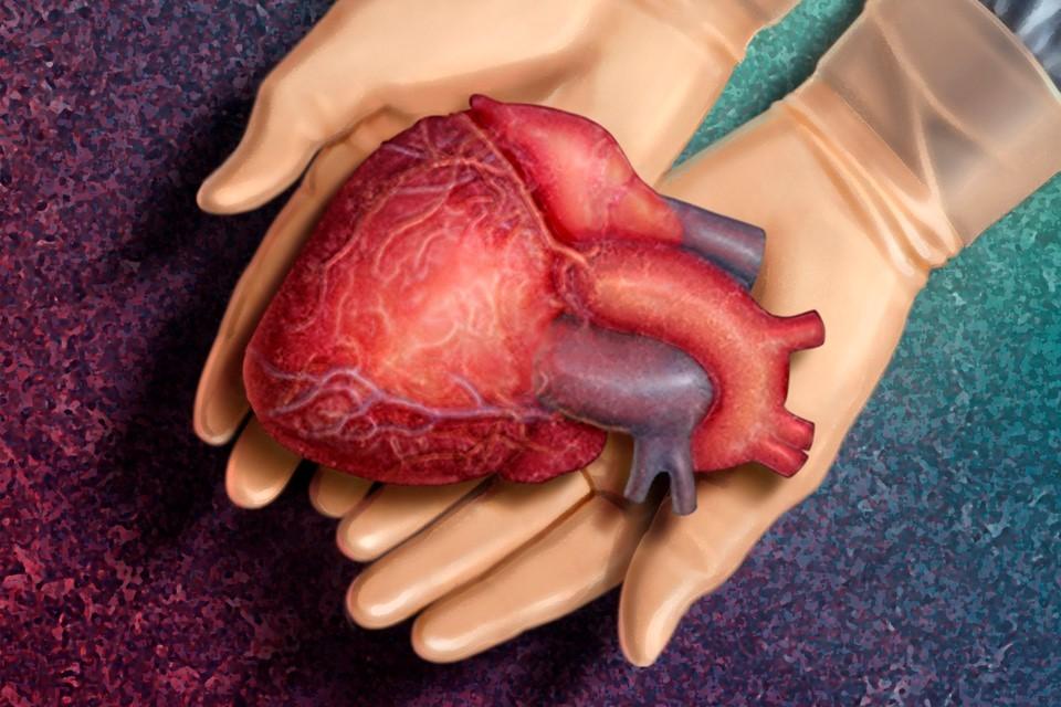 Levegőtisztítás transzplantáció után